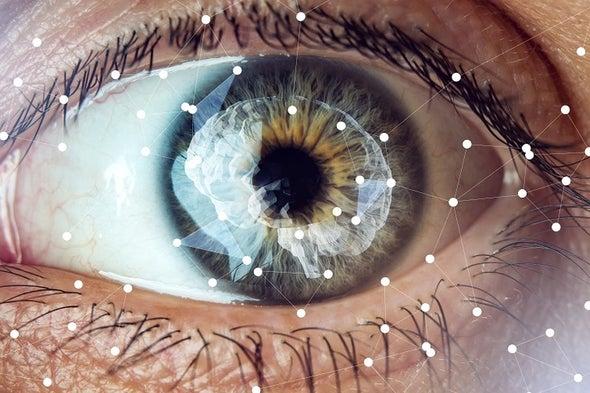 طبيب العيون قد يشخص ألزهايمر مبكرًا