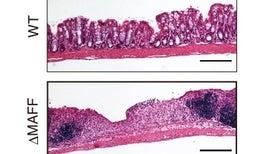 """""""الجلوبين المناعي"""" يساعد على حماية الأمعاء من الالتهابات"""