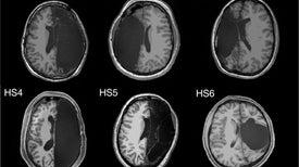 فقدان نصف الدماغ لا يعني نهاية المطاف