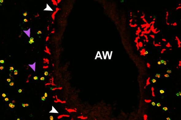هل يمكن أن تكون خلايا حفظ الاستقرار سلاحًا لمواجهة كوفيد-19؟