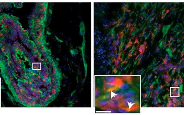 """""""عوامل خارجية"""" تُسهِم في زيادة نشاط خلايا سرطان الثدي"""