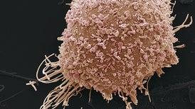 تطبيق معتمد على الذكاء الاصطناعي يمكنه فحص سرطان عنق الرحم