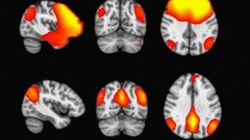 التنقل المستمر بين حالات عقلية مختلفة علامة على الوعي