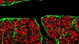 سابحاتٌ نانَويَّةٌ حاملةٌ للأدوية قد تتمكن من التسلل إلى ما وراء الدفاعات الخلويَّة للمخ