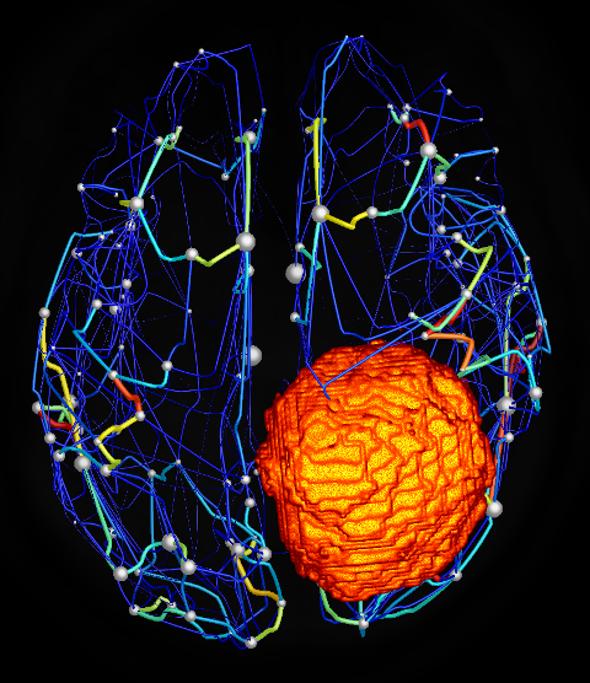 برنامج يُحاكي نشاط الدماغ للتنبؤ بنتائج الجراحات الخطيرة
