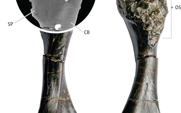 حالة من سرطان العظام في حفرية عمرها 240 مليون سنة