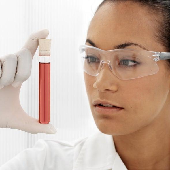 اختبار بسيط للدم يتنبأ بإصابات ألزهايمر قبل ظهورها بـ16 عامًا