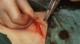يمكن لخلايا الشعر أن تشفي جروح الجلد من غير أن تترك أي ندوب