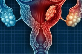 طريقة جديدة أسرع وأدق وأقل كلفة لاكتشاف سرطان عنق الرحم