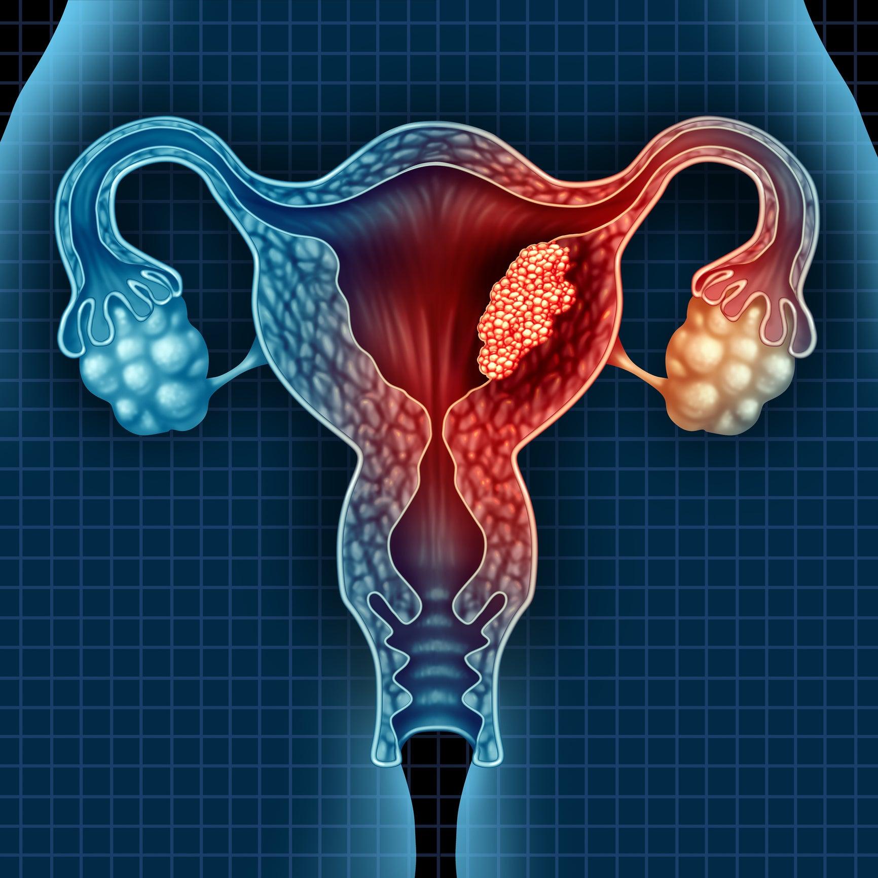 طريقة جديدة أسرع وأدق وأقل كلفة لاكتشاف سرطان عنق الرحم للع لم