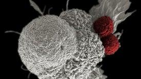 """زرع """"بكتيريا الأمعاء"""" يخفف التهاب القولون الناتج عن العلاج المناعي للسرطان"""