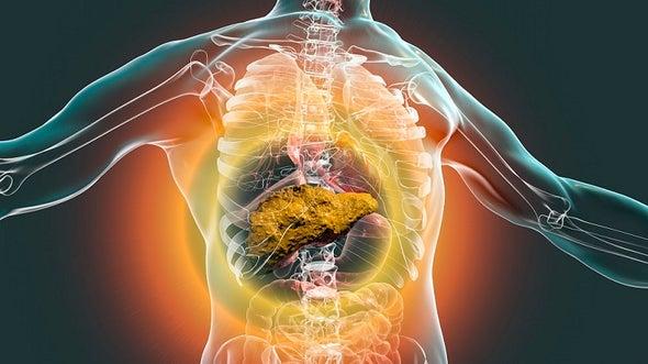 الكبد الدهني وإكسير الحياة القاتل