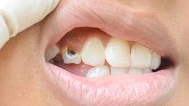 ابتكار تركيبة نانوية لإيقاف «تسوس الأسنان»