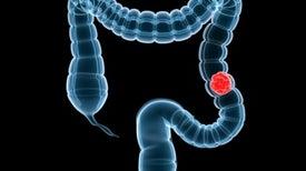 3 أشهُر من العلاج الكيميائي تكفي بعض مرضى سرطان القولون