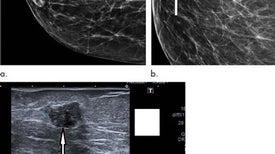 """""""الماموجرام الرقمي"""" يزيد معدلات التشخيص المبكر لسرطان الثدي"""