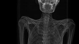 """هياكل عظمية تؤكد ندرة الإصابة بالسرطان في """"مصر القديمة"""""""