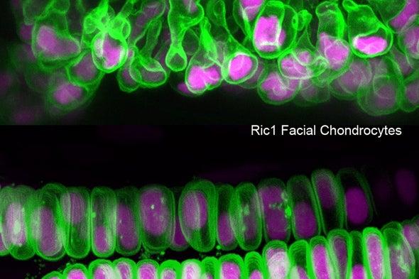 دراسات على البشر وأسماك الزرد تكشف عن متلازمة متعلقة بالكولاجين