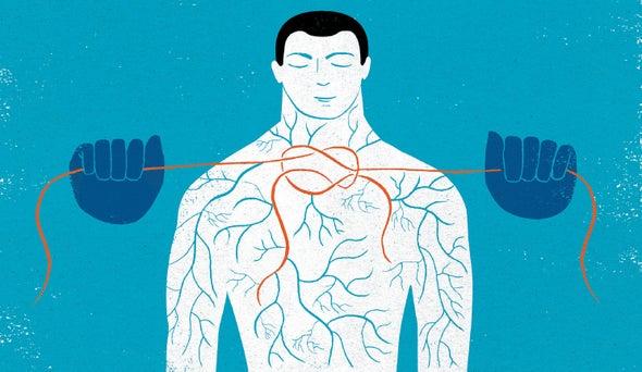 لماذا قد يفشل الدواء المعالج للسكتة الدماغية؟