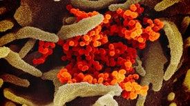 «فيروس كورونا» يغزو الجهاز الهضمي أيضًا