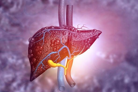 علاج الكبد الدهني بـ«إسكات الجينات»
