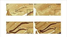 الحد من نوبات الصرع بإزالة الخلايا العصبية الجديدة