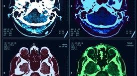 أطلس جديد أكثر تفصيلًا للقشرة الفرعية للدماغ البشرية