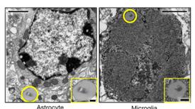 """خلايا """"الزومبي"""" تُسبب التدهور الإدراكي"""