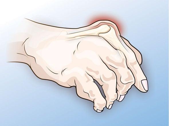 في نشرة العلوم: علاج محتمل وأكثر فعالية وآماناً لمرض الروماتويد