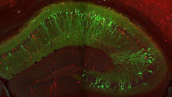 تحديد الخلايا المسؤولة عن تدفق الذكريات