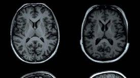 السمنة تؤدي إلى تغيرات في بنية المخ وشكله