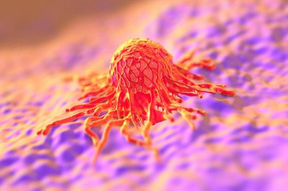 آلية نانوية لاكتشاف الأورام السرطانية في البدايات