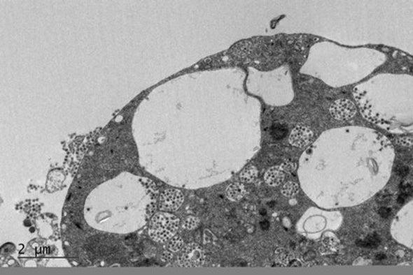 أدوية قد تمنع تكاثر فيروس «سارس-كوف-2» في الخلايا البشرية