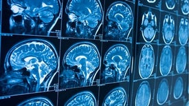 «التصوير بالرنين المغناطيسي» يكشف أسرار التطرف