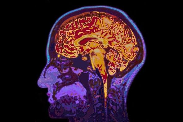 الذكريات المنسية للأحداث الصادمة تحظى ببعض الدعم من دراسات قائمة على تصوير الدماغ