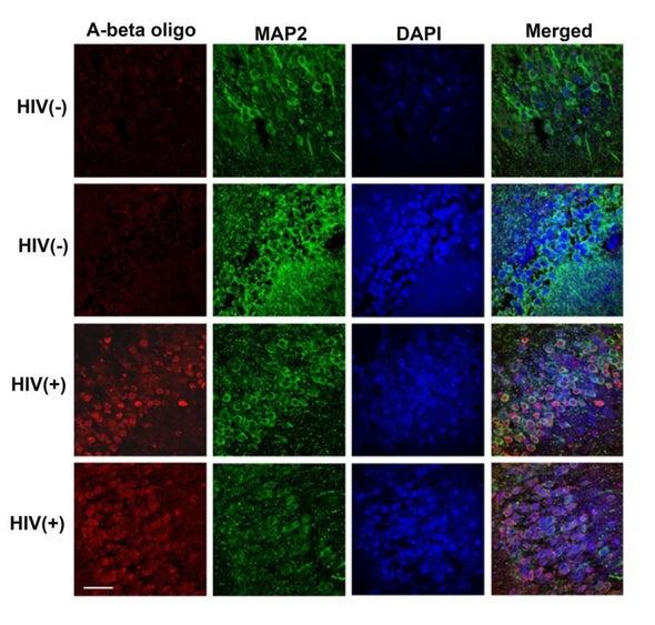 بروتين يُسبب «ألزهايمر» قد يكون هدفًا واعدًا لعلاج اضطرابات «الإيدز» المعرفية