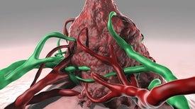 فيروس معدل وراثيًّا لعلاج أورام الدماغ عند الأطفال