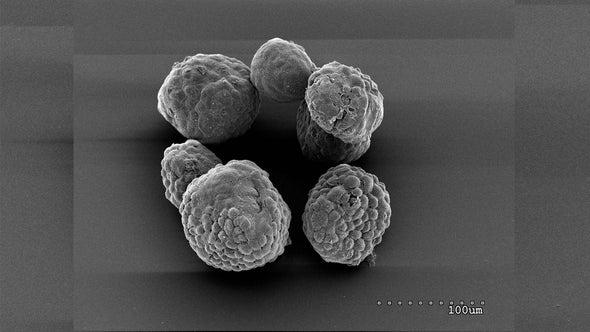 وقف تخزين الكوليسترول قد يمنع نمو أورام البنكرياس