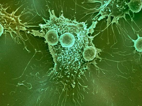بيولوجيا السكريات تشير إلى استراتيجية بارعة لعلاج السرطان