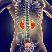 أمراض الكلى قد تؤدي إلى الإصابة بالسرطان