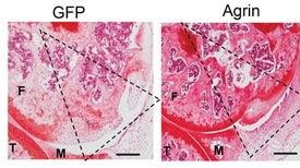 في نشرة العلوم: بروتين يعالج العظام ويجدد الغضاريف التالفة