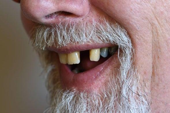 فقدان الأسنان قد يؤدي إلى الإصابة بالخرف