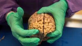 أدلة قوية على ارتباط كرة القدم بأمراض المخ تُشعِل المطالبات بمزيد من الأبحاث