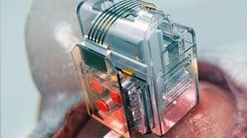 أول جهاز يغذي الدماغ بالعقاقير بكبسة زر من هاتفك