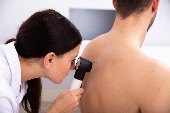 «التغيرات فوق الجينية» ترتبط بتطور سرطان الجلد وانتشاره