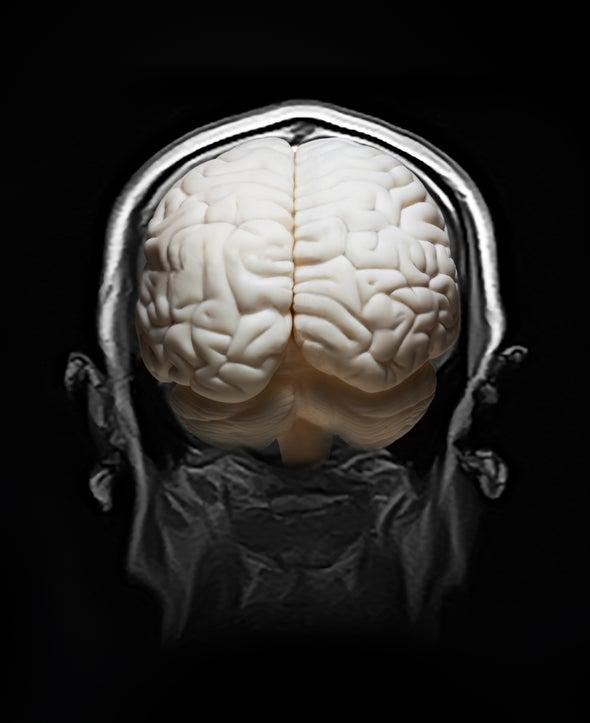 """دراسة موسَّعة عن الدماغ تكشف شبكات جينية """"مدفونة"""" ترتبط بالمرض النفسي"""