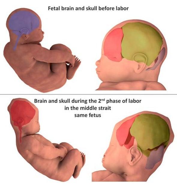 جماجم الأجنة تتعرض لضغوط كبيرة في أثناء الولادة