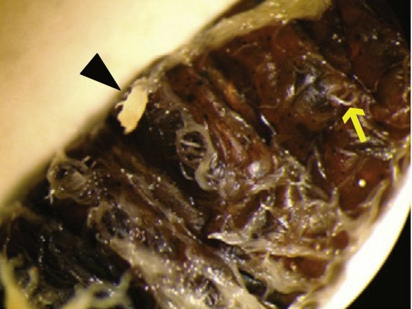 Leaping Nematodes! Tiny Worms Jump to Reach Next Victim