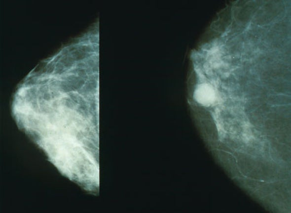 "Questioning Mammograms Versus ""Torturing the Data"""