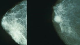 """Questioning Mammograms Versus """"Torturing the Data"""""""