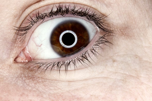 "Anatomy of a Superstition: When Your Eye ""Jumps"""